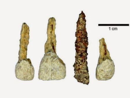 вставной зуб возрастом 2300 лет