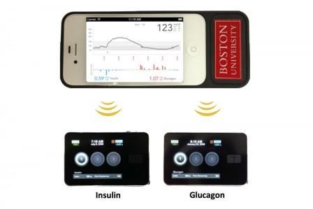 iPhone 4S со специальным приложением и две помпы для подачи инсулина и глюкагона