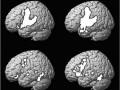 Снимок МРТ, иллюстрирующий активность работы мозга