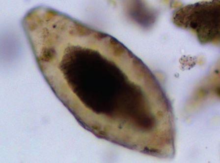 Археологи обнаружили паразитов