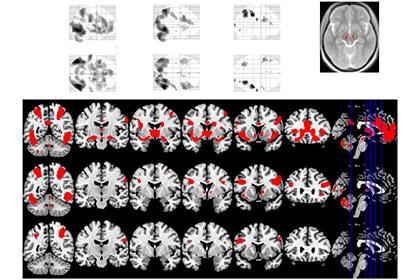 Зоны головного мозга, обнаружившие активность во время исследования