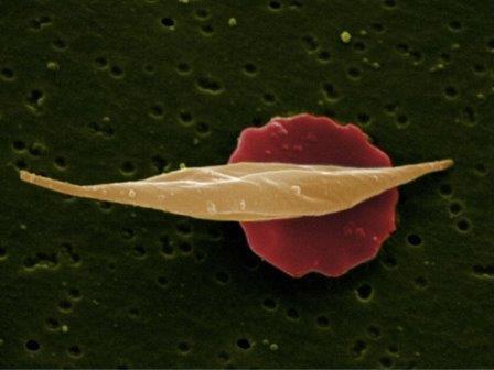 Обычный и серповидный эритроциты