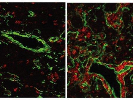 Клетки тимуса крысы с выключенным и работающим геном FOXN4