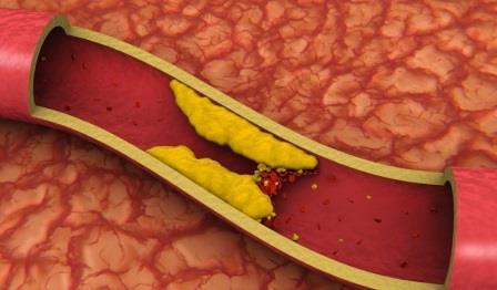 Этот смертельно опасный холестерин