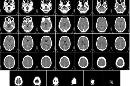Компьютерная томография головного мозга человека