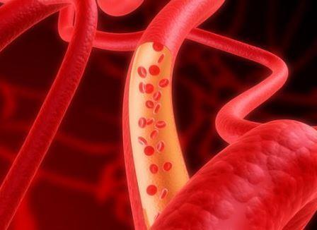 Новый метод восстановления кровеносных сосудов
