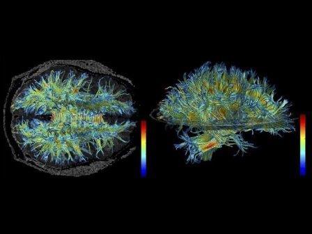 Белое вещество человеческого мозга