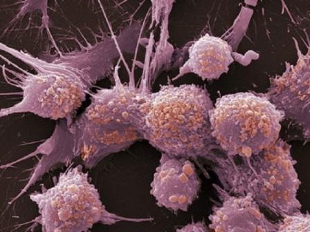 Злокачественные клетки под увеличением электронного микроскопа