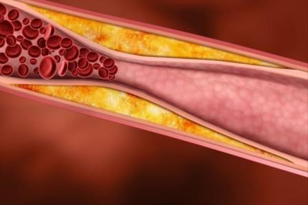 Желчные кислоты могут бороться с диабетом