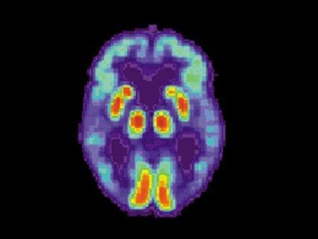 Томограмма мозга пациента с болезнью Альцгеймера