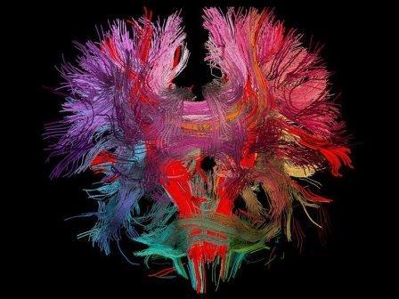 Модель нейронных связей в человеческом мозге