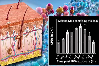 Ультрафиолет оказался опасным для кожи после пребывания под солнцем