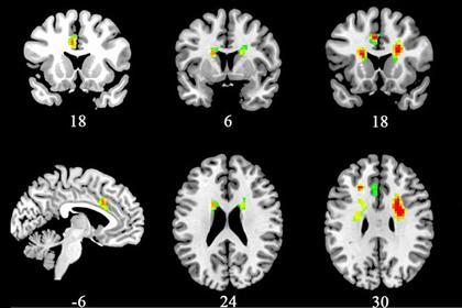 Ученые определили воздействие любви на мозг