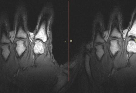 За хрустящими пальцами ученые наблюдали с помощью томографа