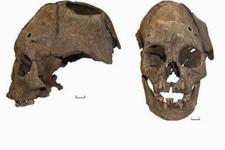 древний череп ребенка со следами хирургической операции