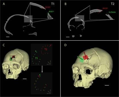 Виртуальная модель черепа СУ 17.