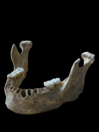 Челюстная кость Оасе 1