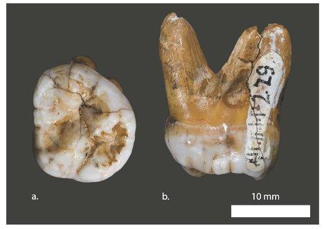 Зуб ранее неизвестного типа людей, найденный в Денисовой пещере на Алтае.
