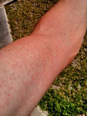 Сыпь на руке при лихорадке Зика