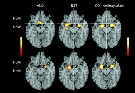 Человеческий мозг тоже реагирует на феромоны. Желтым цветом показаны участки мозга, активирующиеся под действием запахов половых гормонов (AND – андростерон, EST – эстроген) или просто человеческого тела (OO, Оrdinary Оdors). Вверху обозначены активные участки, общие у гомосексуальных мужчин (HoM) и гетеросексуальных женщин (HeW). Внизу – общие у мужчин традиционной сексуальной ориентации (HeM – гетеросексуальные мужчины)