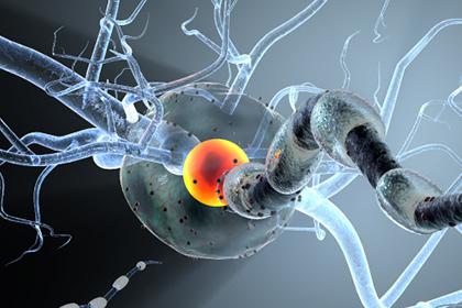 Нейробиологи научились лечить рассеянный склероз