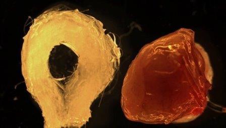 Искусственная печень, выращенная из стволовых клеток человека