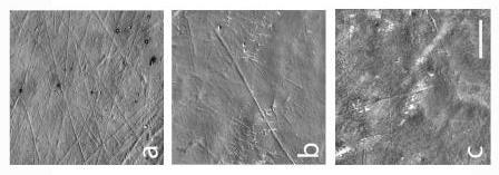 Так выглядит щёчная поверхность зубов под электронным микроскопом