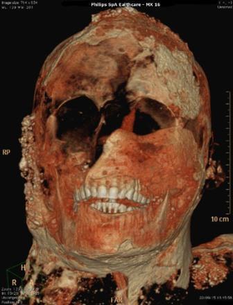 Прекрасные зубы жителя Помпей