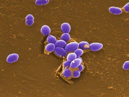 Электронная микрофотография Enterococcus faecalis