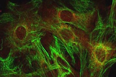 Астроциты - вспомогательные клетки нервной ткани мозга