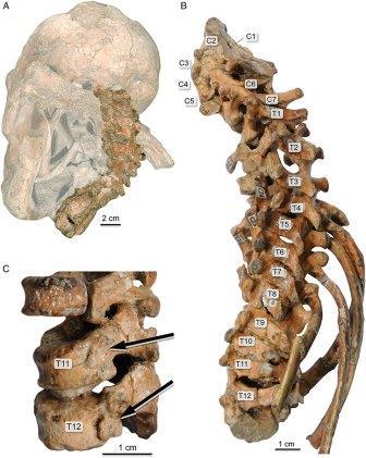 Фото позвоночника DIK-1-1 в связке с черепом, плечевым поясом и рёбрами