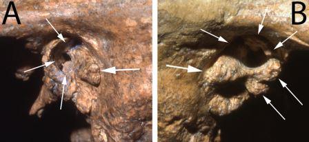 Экзостозы наружного слухового прохода на черепе неандертальца