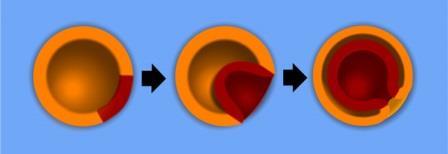 Рис. 2. Инвагинационная гаструляция, характерная для нормального развития актинии нематостеллы. Оранжевым показана эктодерма, а красным — энтодерма. Зона вворачивания становится оральным полюсом эмбриона © ru.wikipedia.org