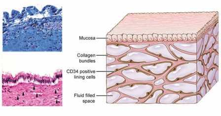 Слева вверху — препарат, приготовленный с помощью стандартной процедуры (структуры соединительной ткани разрушены), внизу —замороженный препарат. Справа — трехмерная структура интерстиция ©Benias et al.