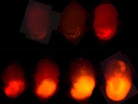 Стадии роста глиобластомы © Salk Institute