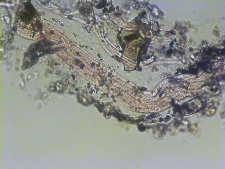 Thiolava veneris © Roberto Danovaro