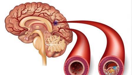 Сравнение здоровой артерии и артерии с атеросклеротическими бляшками, образование которых может привести к инсульту ©РИА Новости