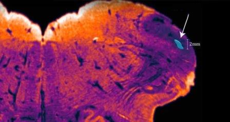 Обнаруженный участок мозга endorestiform nucleus ©NeuRA