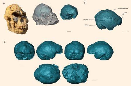 Результаты сканирования мозга Литл Фут ©Beaudet et.al.