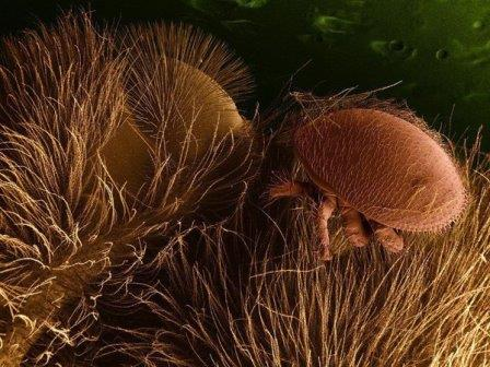 Клещ варроа на пчеле. Снимок сделан электронным микроскопом © United States Department of Agriculture