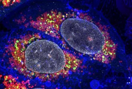 Клетки (синие - ядра показаны белым), которые полны поврежденных митохондрий (красные). Некоторые из поврежденных митохондрий являются мишенями для рецепторов аутофагии (зеленого цвета), которые накапливаются быстрее благодаря процессу, раскрытому в статье. ©Dr Padman at Monash Micro Imaging