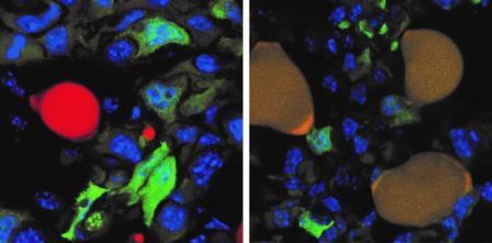 Слева: клетка жировой ткани (красный) и раковые клетки (зеленый). Справа: клетки жировой ткани, получившиеся из раковых (желтый) © Department of Biomedicine, University of Basel