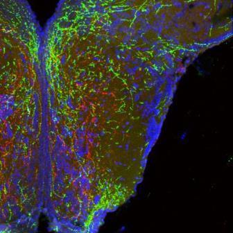 Длинные выступы нейронов в гипоталамусе, которые образуют цепи массы тела, выглядят красными и зелеными. Клеточные тела от одной области гипоталамуса (нижняя часть изображения) разветвляются до другой. ©Dr. Sebastien Bouret, CHLA