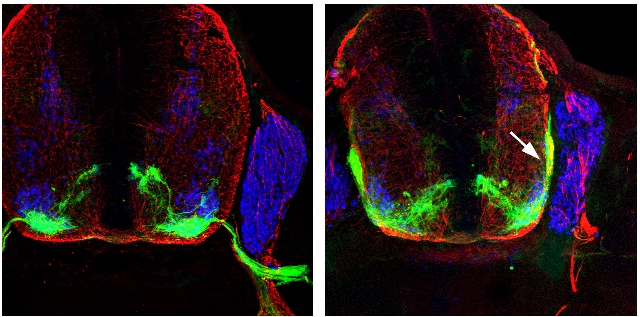 Моторные нейроны