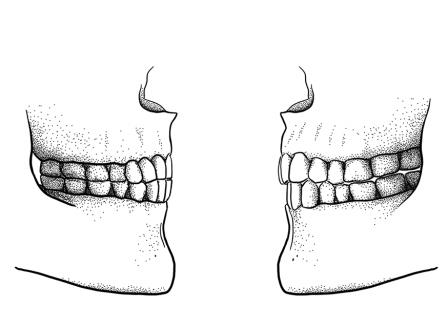 Разница между прикусом людей времен палеолита (слева) и прикусом современного человека (справа)© Tímea Bodogán