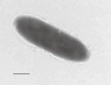 В ходе исследования экосистемы Марианской впадины ученые обнаружили новый вид бактерий, питающихся углеводородом / © University of East Anglia
