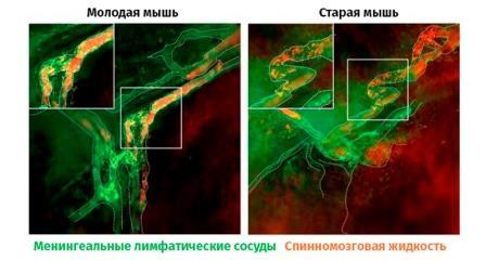 Сравнение состояния фрагмента «центрального мусоропровода» у мышей разного возраста© IBS