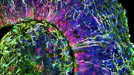 Каждая из этих разноцветных клеток человеческого мозга является частью кортикального органоида, трехмерного скопления клеток (показано в поперечном разрезе), которое имитирует некоторые аспекты раннего развития мозга© Muotri Lab/UCTV