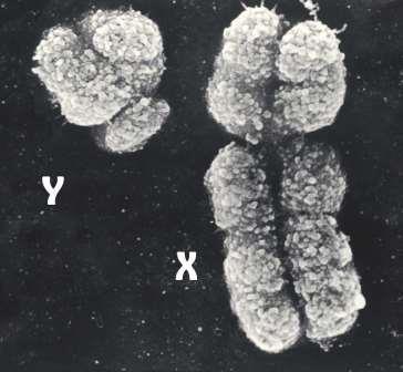 Фотография Y- и Х-хромосом. сделанная при помощи электронного микроскопа © Wired