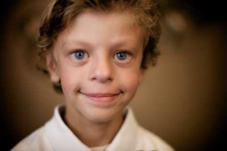 Ребенок с синдромом Вильямса © The Conversation